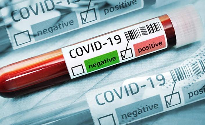 Aşı Olduktan Sonra Korona Virüse Yakalandı